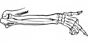 trattamento delle fratture ossee